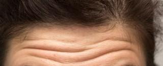 Cientistas concluem que rugas profundas na testa indicam risco maior de morte por doença cardíaca