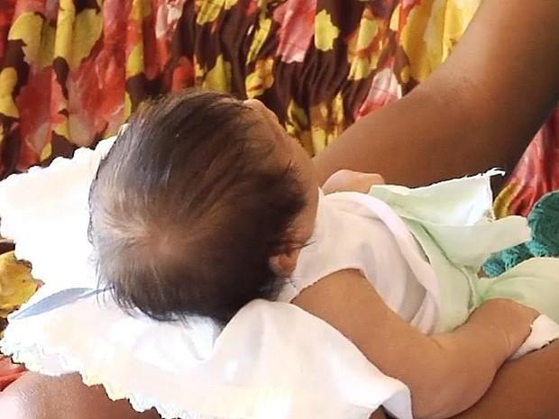 Governo diz que pagará bolsa mensal a famílias de bebês com microcefalia