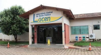 Com resultados em até sete dias, Lacen realiza em média 600 exames de zika, dengue e chikungunya por mês