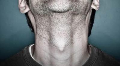 Nódulos: Homens também são propensos ao câncer de tireoide