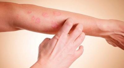 USP desenvolve dispositivo óptico para a cura do câncer de pele