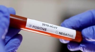 Coronavirus - Com 9 mortes registradas em 24 horas, Rondônia ultrapassa os 3.100 casos. Recuperados são 892