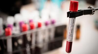 Rondônia passa dos 23 mil casos do novo coronavirus