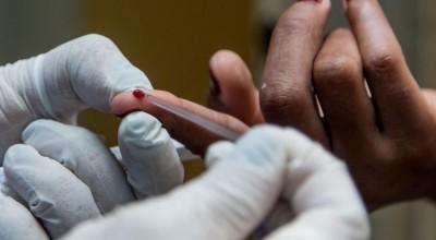 Menos de 7% da população de Rondônia fez algum teste de Covid-19, revela IBGE