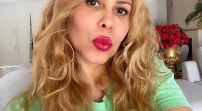Cantora Joelma revela que descobriu problema no sangue após a Covid-19